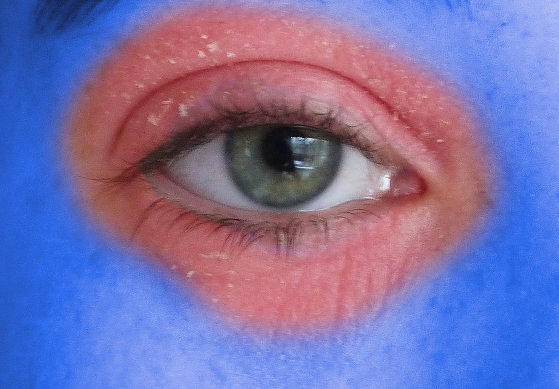 Never Ending Eczema on Eyelid - The Ultimate Guide to Treating It - Stopitchy - Eczema Treatment Information Hub, Dermatitis