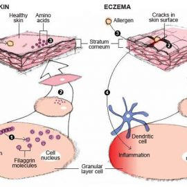 Filaggrin Gene Expression Deficiency Causing Your Eczema?