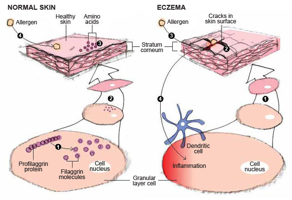 Filaggrin Gene Expression Deficiency Causing Your Eczema ...